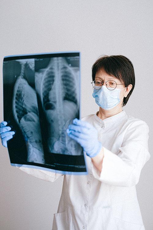 Gravedad en pacientes con fibrosis pulmonar idiopática es muy alta si se contagian de Covid-19