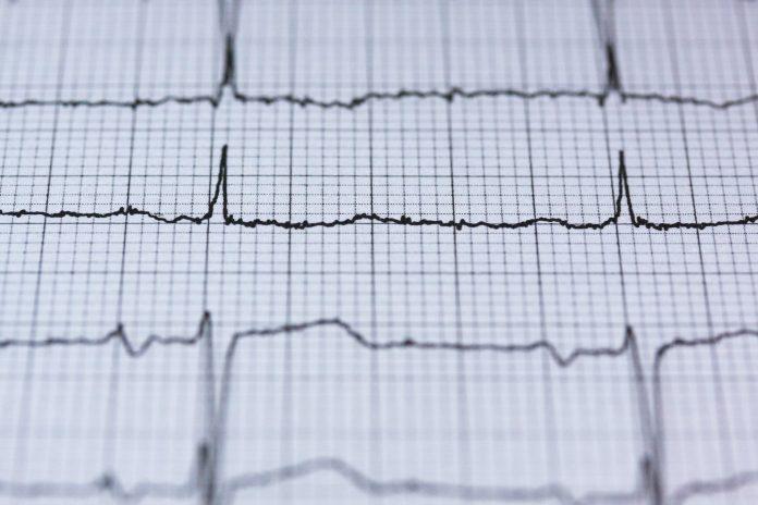 El frío aumenta riesgos de infartos al corazón